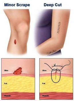 treat minor injury cut scrape