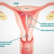 contraceptives IUD mirena