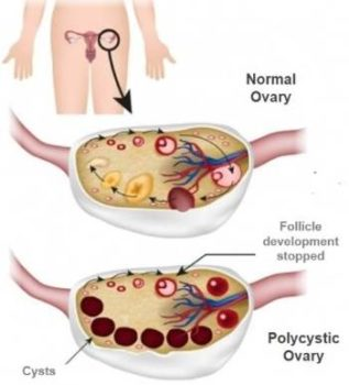 polycystic ovarian syndrome pcos treatment