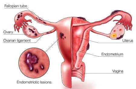 endometriosis symptoms treatment