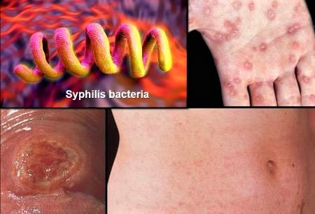 std syphilis