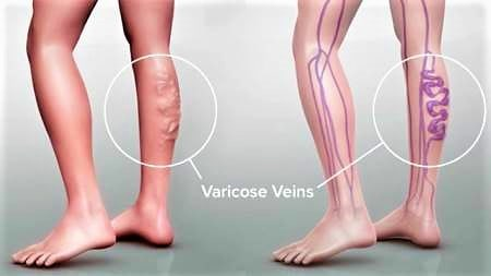 hemorrhoids and varicose veins in pregnancy