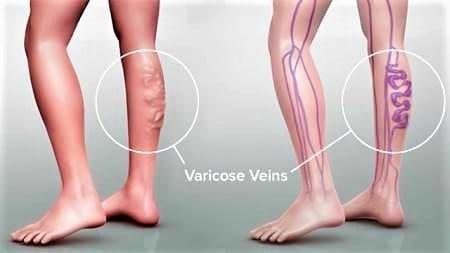 varicose veins in pregnancy treatment